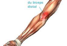 Contracture musculaire : définition du phénomène