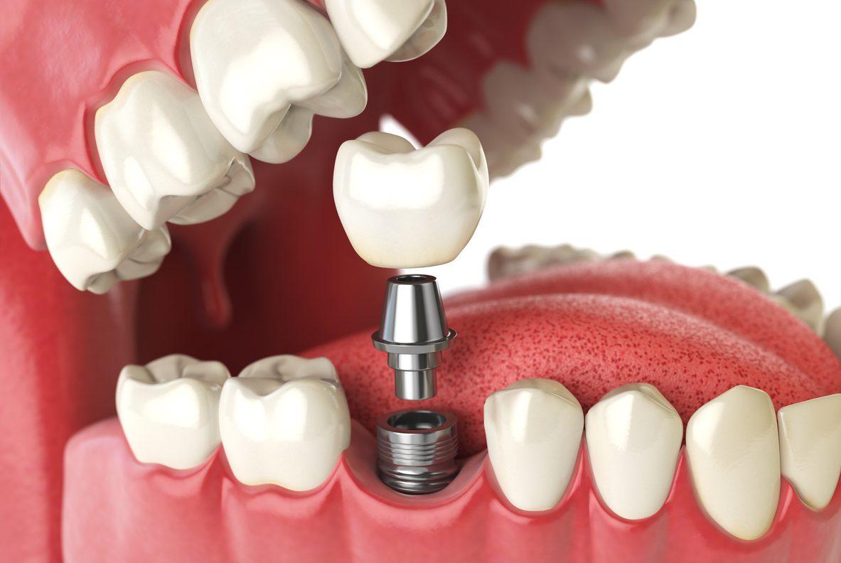 Implant dentaire : Comment soigner les dents ?
